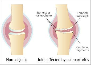 C:\Users\1\Desktop\osteoarthritis_diag.jpg
