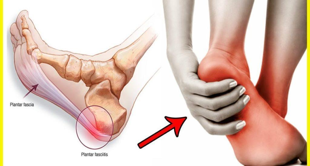 How Can Plantar Fasciitis be Treated Without Drugs, Insoles ...