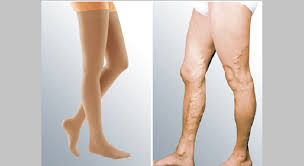 Thigh-highs for men with medical conditions