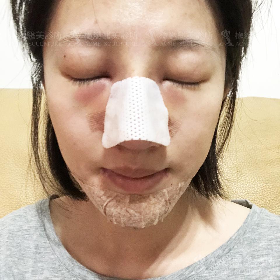 結構式隆鼻術後恢復