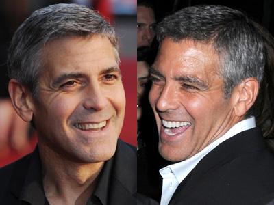 Джордж Клуни не стесняется носить виниры