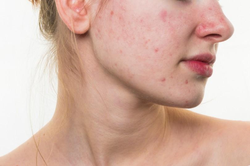 """Độ pH không cân bằng làm suy yếu """"hệ miễn dịch"""" của làn da"""