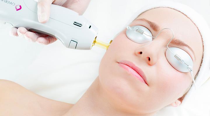 Bắn laser cũng là một trong những phương pháp điều trị nám được lựa chọn nhiều hiện nay