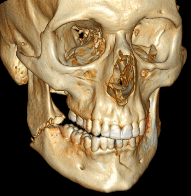 3D_CT_of_bilateral_mandible_fracture.jpg