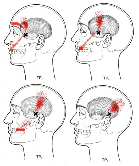 temporalis pressure points for headaches