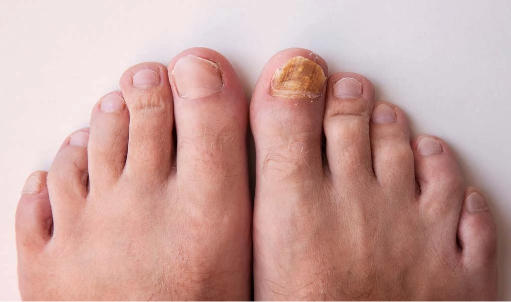 Toenail fungus before and after 2.png