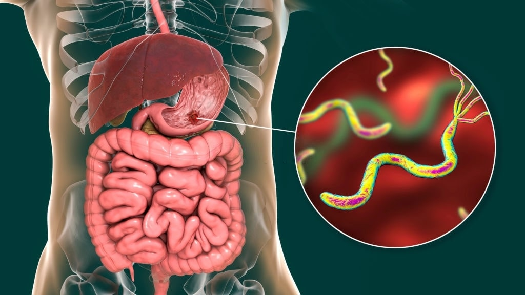 H. Pylori bacteria can cause stomach ulcer