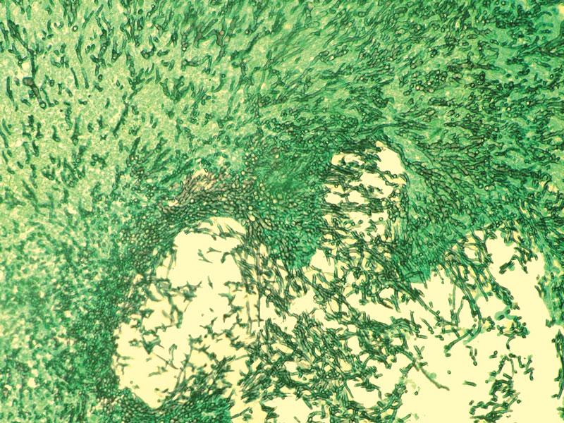 Mycelial growth of Aspergillus fumigatus throughout an avian pulmonary granuloma