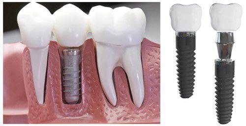Thời gian trồng răng Implant mất bao lâu và khi nào thì phải làm lại?
