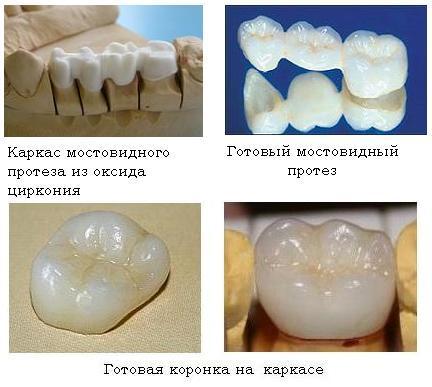 Протез, состоящий из диоксида циркония