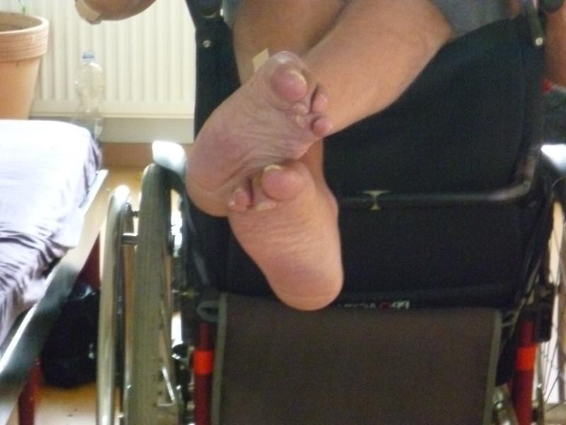 a person's feet with Calcaneonavicular Coalation