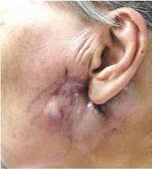 Рассасывание опухоли за счёт уничтожения только злокачественных клеток
