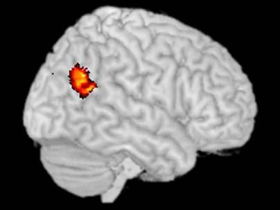 The temporoparietal junction (TPJ) – Brian's Bewildering Brain Blog