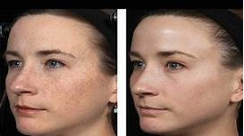 Simple Trick to Remove Age Spots from Your skin