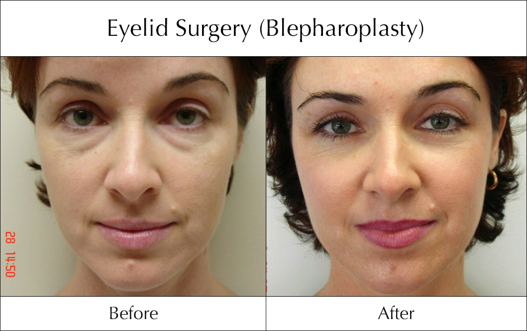 eyelid-surgery-blepharoplasty-before-and-after-5.jpg