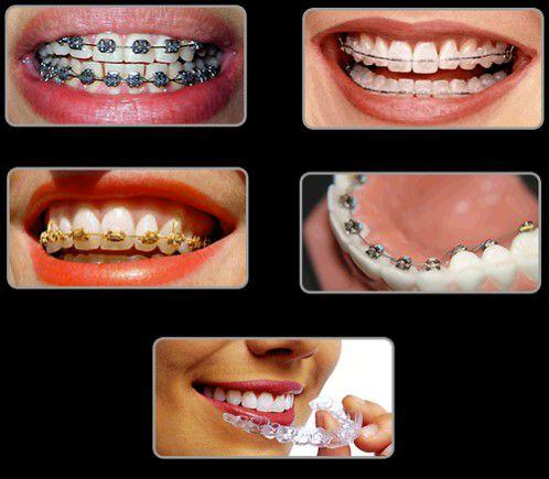 Niềng răng có tác dụng gì? - Niềng răng có nguy hiểm gì không?