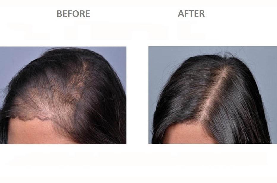 hollywood hair transplant