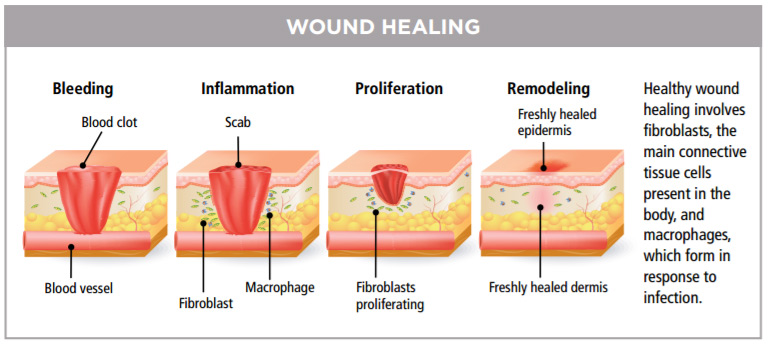 wound-healing-steps-bleeding-inflammation-scab-proliferation-remodeling-epidermis.jpg