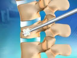 Resultado de imagem para osteoporose coluna cifoplastia