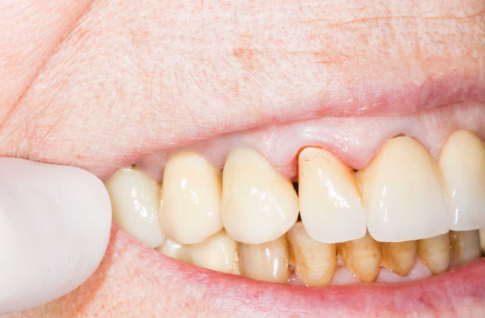 discoloured gums in closeup shot of elderly woman's mouth