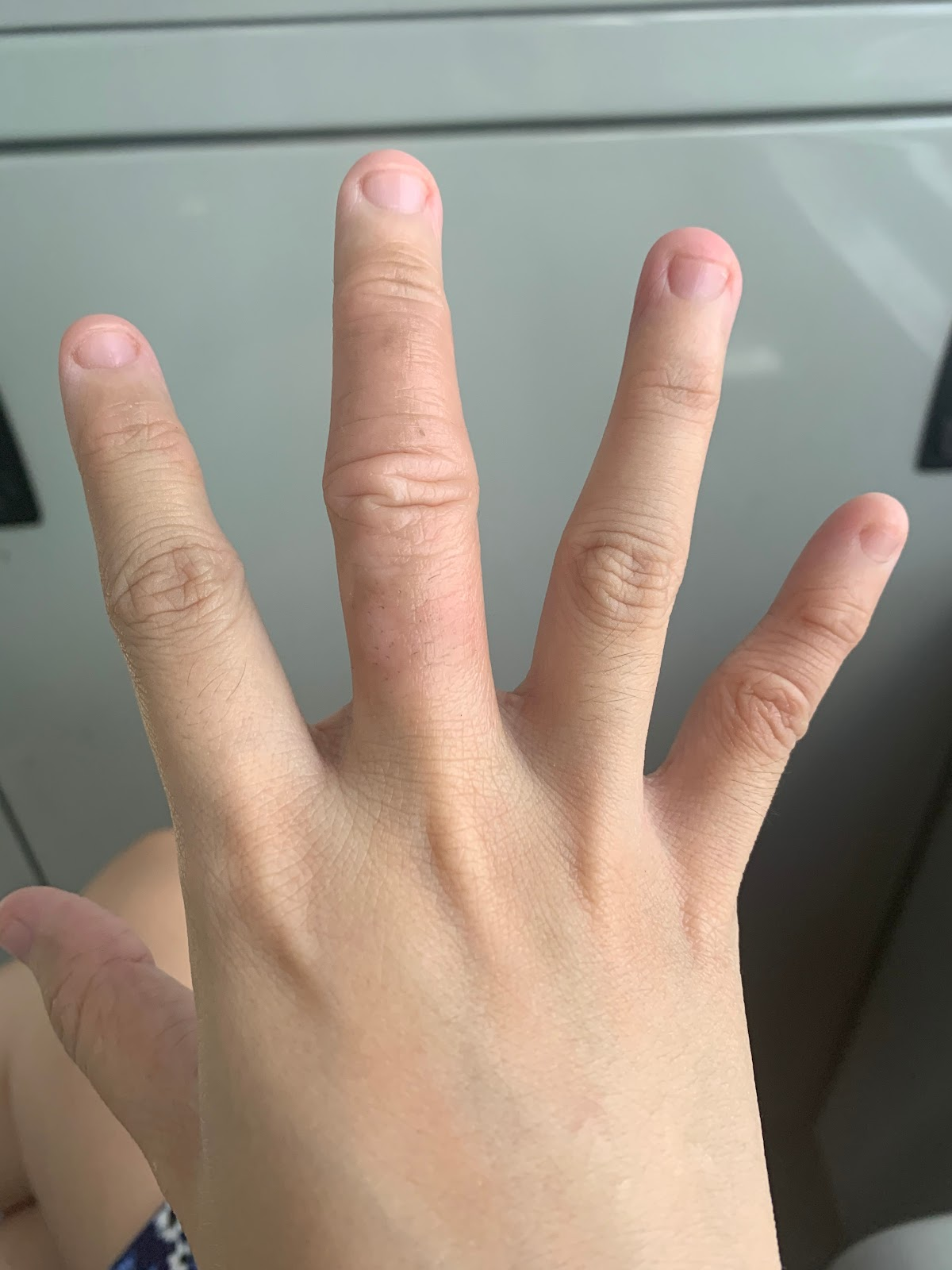 Closer view of improved skin on fingers after emu oil