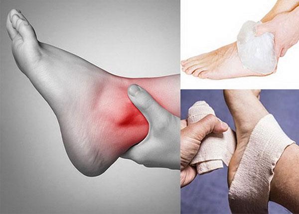 Những lưu ý đặc biệt khi xử trí bong gân cổ chân