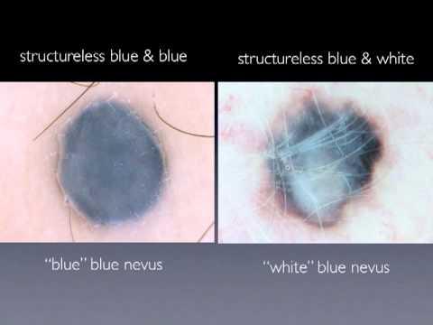 nevus azul