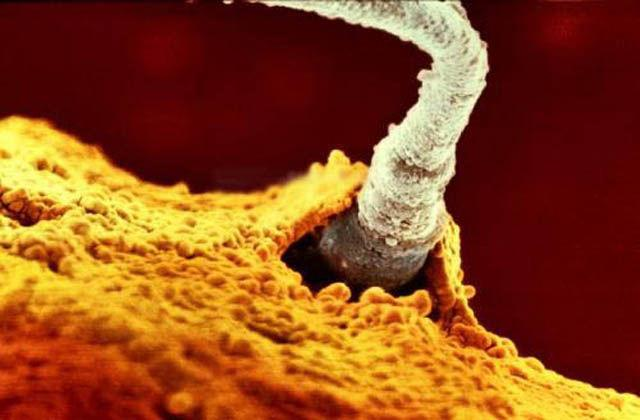 spermatozoid_ovul1.jpg
