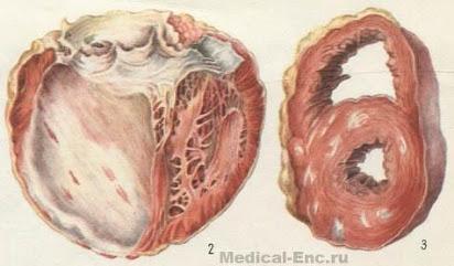 Атеросклеротический кардиосклероз диета
