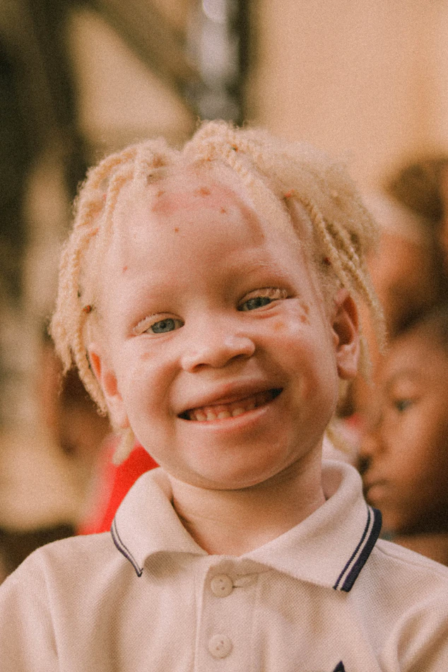 What Makes Albinos Look Like That