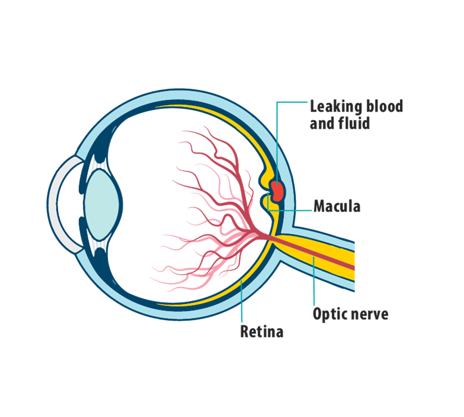 FDA authorizes Eylea 12-week dosing for wet AMD