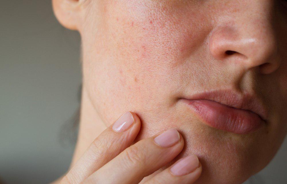 1. Bahaya Gluten - Alergi Kulit