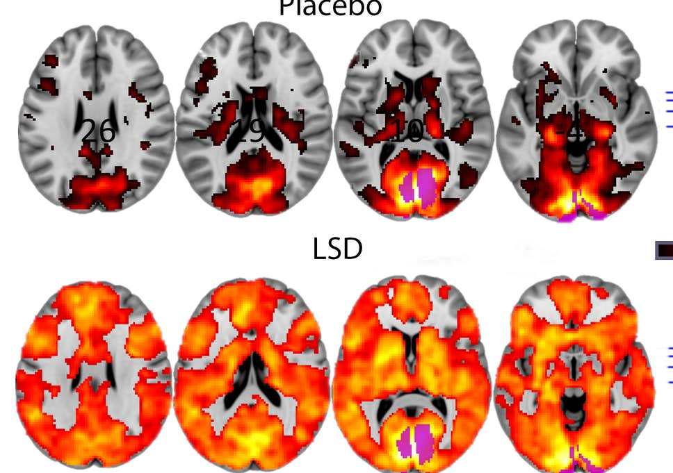 Image result for lsd clinical trials
