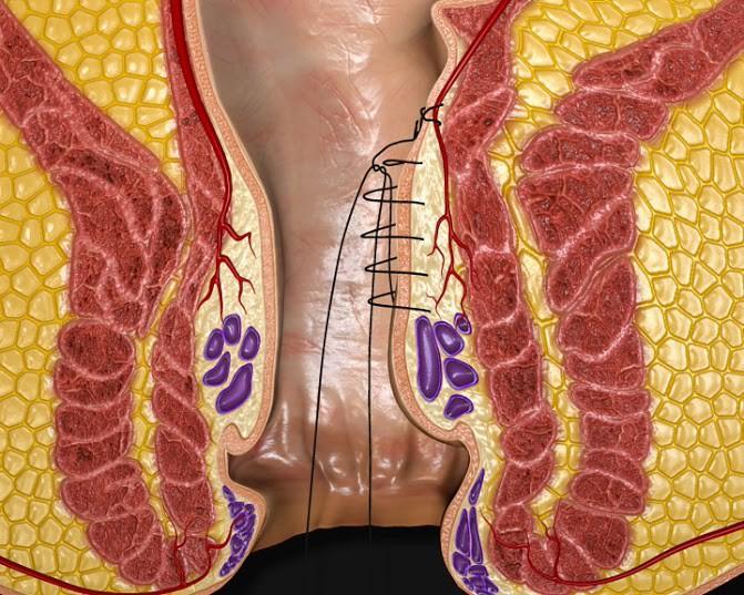 Khâu thắt mạch máu nuôi búi trĩ