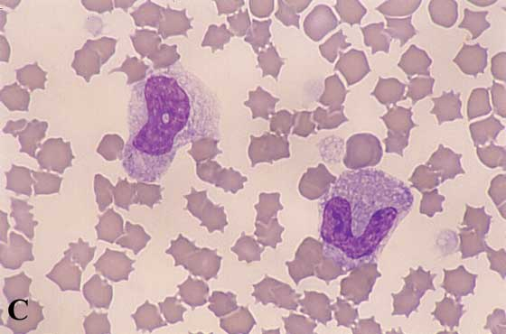 Toxic neutrophils. With severe inflammation or toxemia, neutrophils develop morphologic changes that include cytoplasmic basophilia, ...