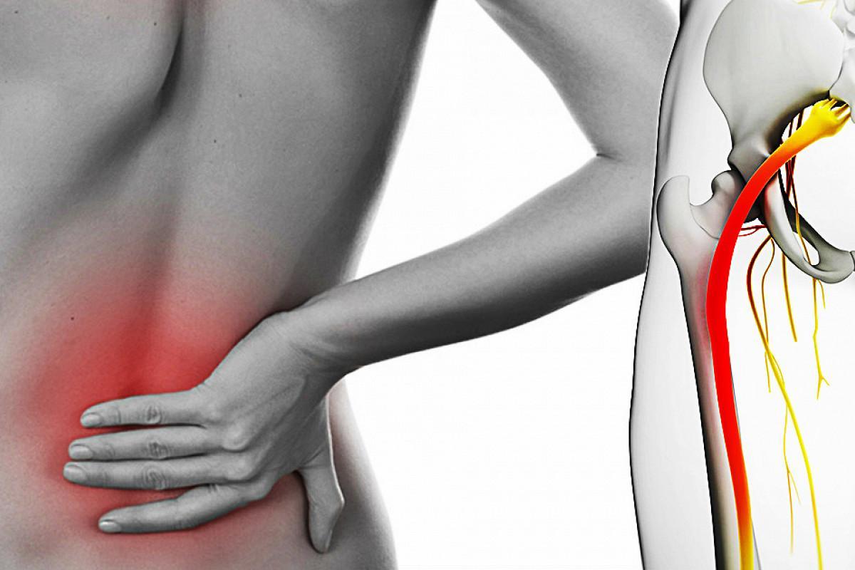 Какие упражнения и как правильно делать при защемлении седалищного нерва? |  Медтехника (Medsklad.com.ua) - Медтехника Ортосалон