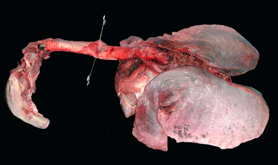View of the entire respiratory tract removed from the cadaver.