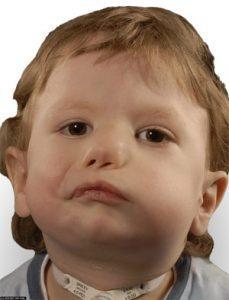 Hasil gambar untuk moebius syndrome