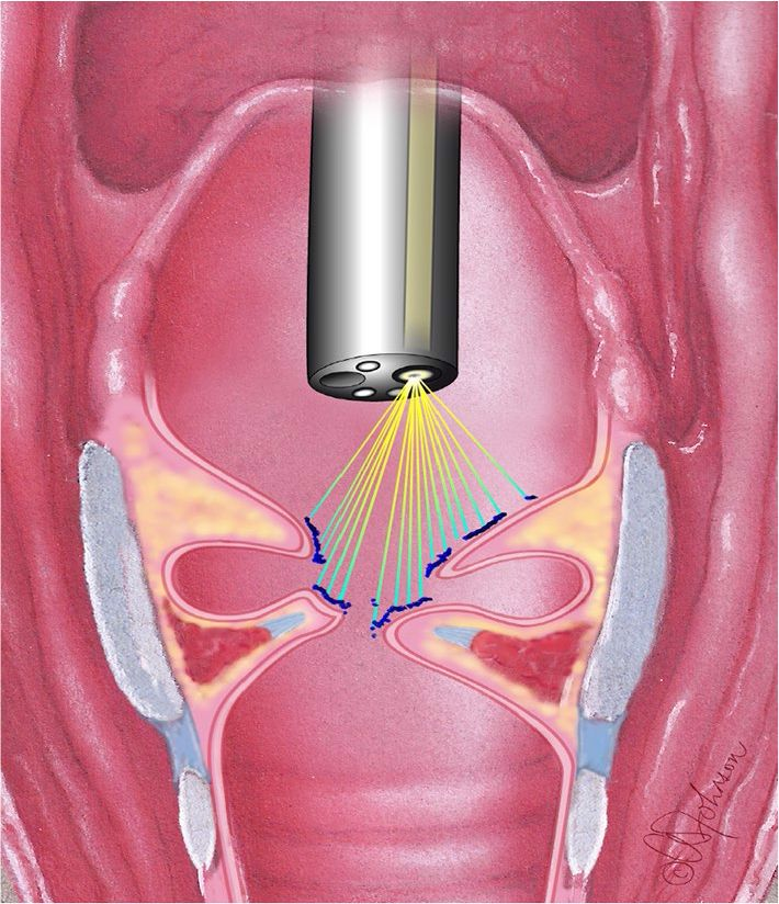 Πολύποδες Φωνητικών Χορδών LASER Επεμβάσεις στο Λάρυγγα Καρκίνος του Λάρυγγα - LASER  Λαρυγγιτιδα