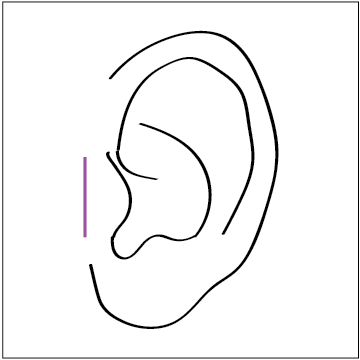 tragus mark 1.png