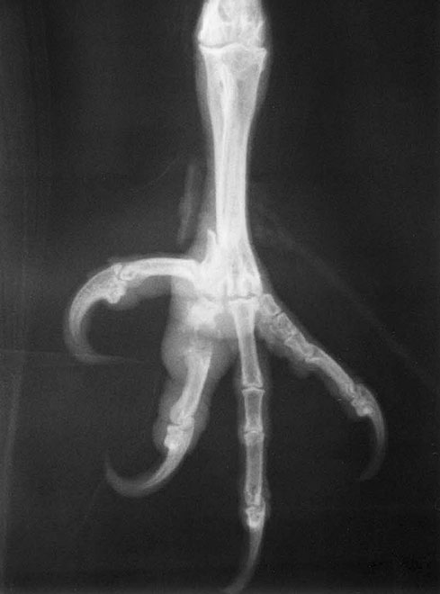 Fracture of the first phalanx of digit 2 in a saker falcon. There was extensive soft tissue swelling and lysis of the bone fragments requiring amputation of the digit.