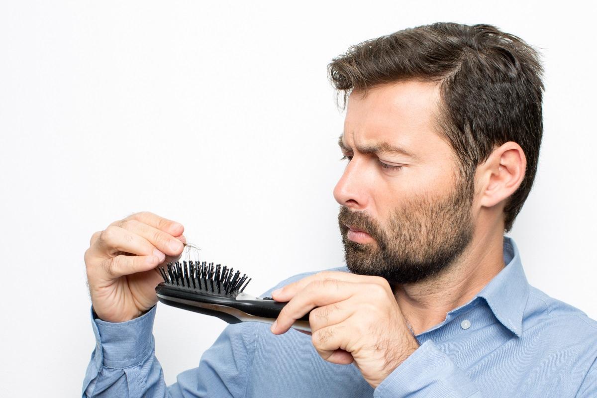 روشهای درمان ریزش مو چیست؟