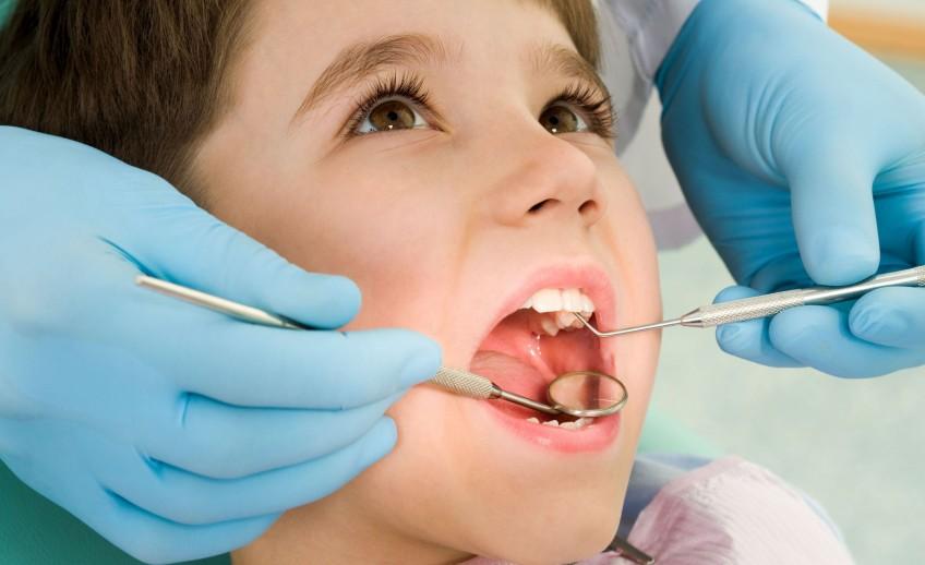 Cạo vôi răng trẻ em có cần thiết không? - Nha Khoa Bally 1