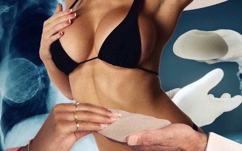 Phẫu thuật ngực tạo khe mang lại những ưu điểm vượt trội