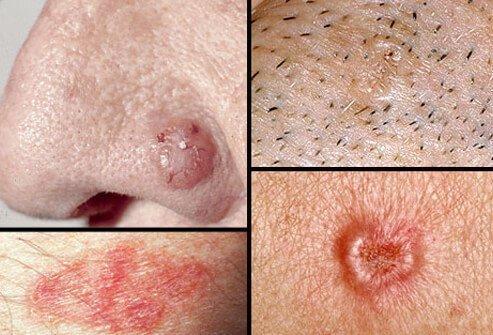 Basal Cell Carcinoma ichhori.com