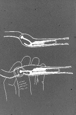 Dibujo esquemático de la región paracervical y del canal cervical canino, con el catéter escandinavo en posición en la vagina craneal