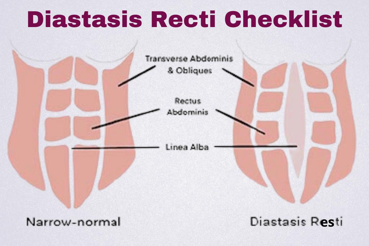 Diastasis Recti Improvement Checklist