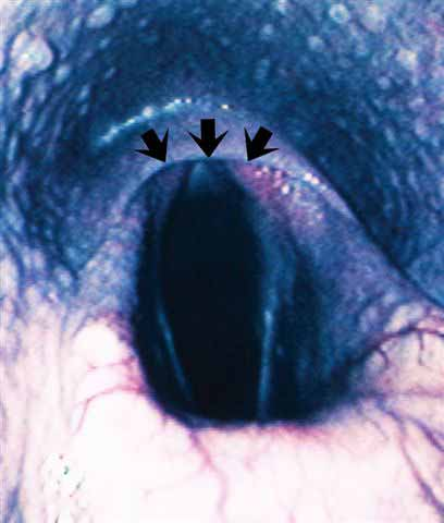 Rostral displacement of the palatopharyngeal arch (arrows) over the apices of the corniculate processes in a horse with a fourth branchial arch defect.