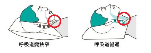 正確睡覺姿勢頭頸部位置示意圖
