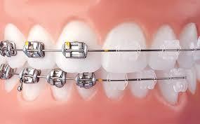 Niềng răng mắc cài tự buộc có tốt hơn mắc cài thông thường?